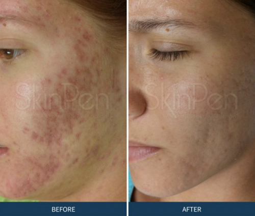 microneedling for acne
